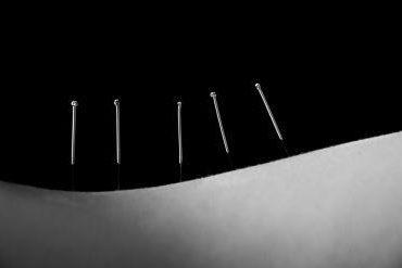 Trayati-Masaže in Bioterapija-Dry needling-Medicinska akupunktura-Kranj Gorenjska-Matej Štrukelj